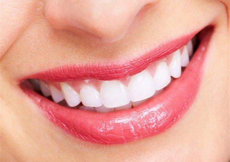 Tẩy trắng răng bằng máng: Những điều cần biết