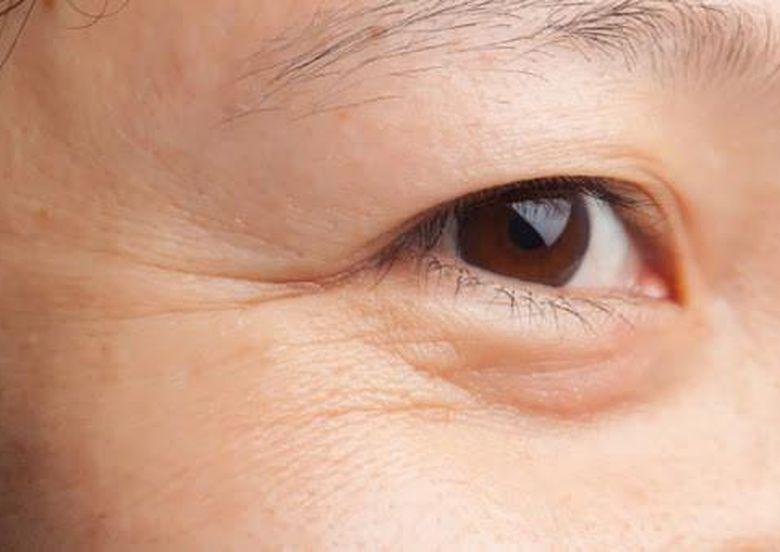 Nguyên nhân khiến vùng da mắt bị khô nhăn và tất cả những gì bạn cần biết để cải thiện tình hình