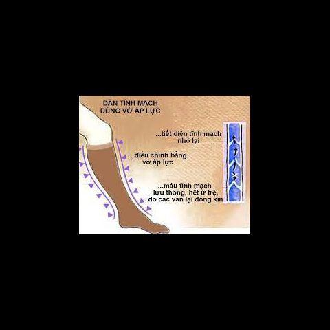 Tất (vớ) tĩnh mạch - điều trị và phòng ngừa suy giãn tĩnh mạch